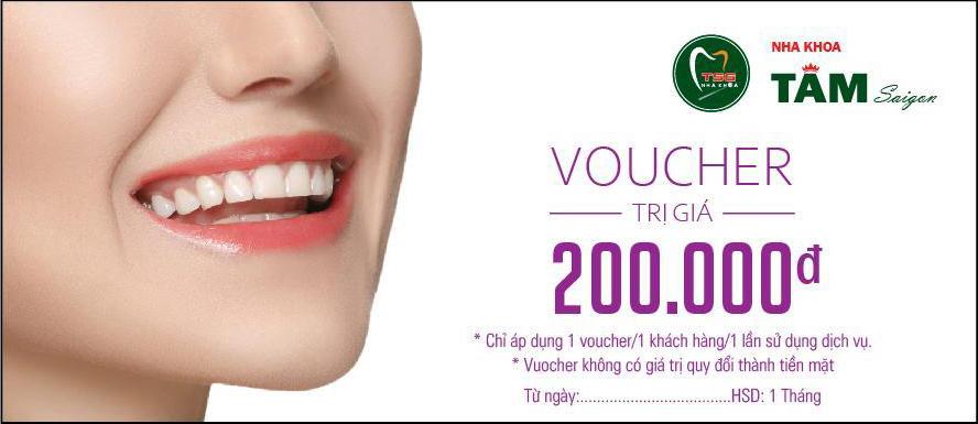 tang-ngay-voucher-tri-gia-200-000-cho-khach-hang-su-dung-dich-vu