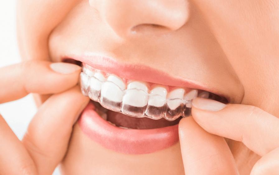 sản phẩm tẩy trắng răng tại nhà