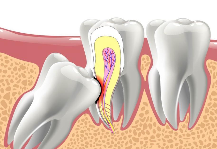 - Sâu răng - Nướu bị viêm nhiễm - Hình thành các túi áp xe - Ảnh hưởng đến các răng kế cạnh - Tổn thương các mô trong miệng - Hình thành u nang, phá hủy xương hàm Khi nào cần nhổ răng khôn? Nếu gặp phải một trong các trường hợp sau, bạn nên đến nha khoa gặp Bác sĩ để nhổ bỏ răng khôn càng sớm càng tốt: - Có dấu hiệu viêm nhiễm lặp lại nhiều lần. - Xuất hiện các u nang, ổ mủ, ảnh hưởng đến các răng kế cận. - Răng khôn bị sâu hoặc mắc bệnh lý nha chu. - Răng khôn mọc ngầm, mọc lệch, mọc kẹt. - Giữa răng khôn và răng hàm số 7 có khe giắt thức ăn, làm tích tụ các mảng bám gây đau nhức. - Răng khôn mọc thẳng nhưng lệch khớp cắn với răng đối diện hoặc không có răng đối diện khiến răng khôn trồi dài hơn, tạo ra khe giắt thức ăn hoặc gây lở loét nướu khi ăn nhai. - Hình dạng răng nhỏ hơn hoặc biến dạng so với bình thường. Có nên nhổ răng khôn chưa mọc?