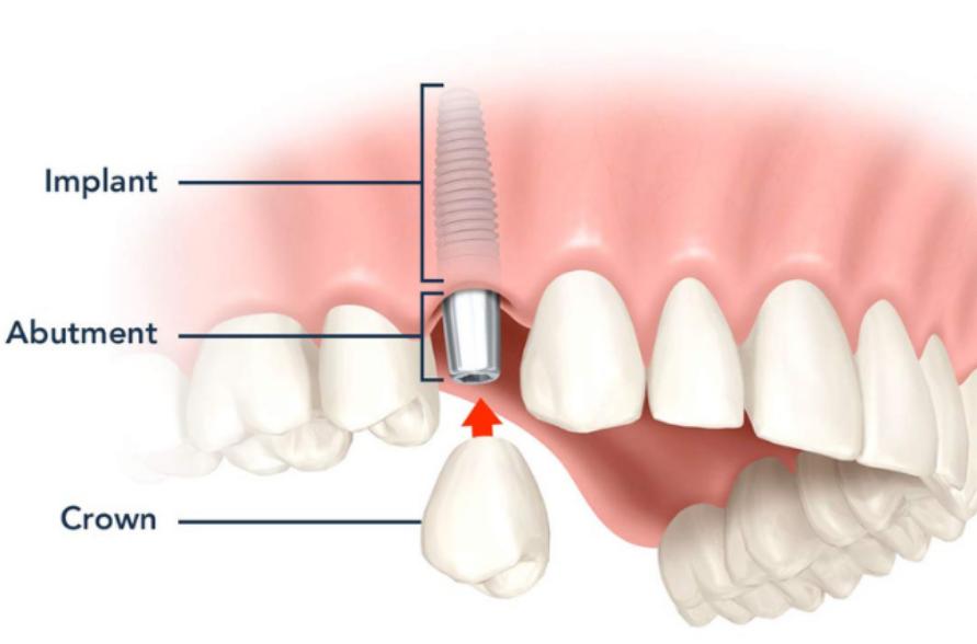 nhung-uu-diem-cua-cay-ghep-implant
