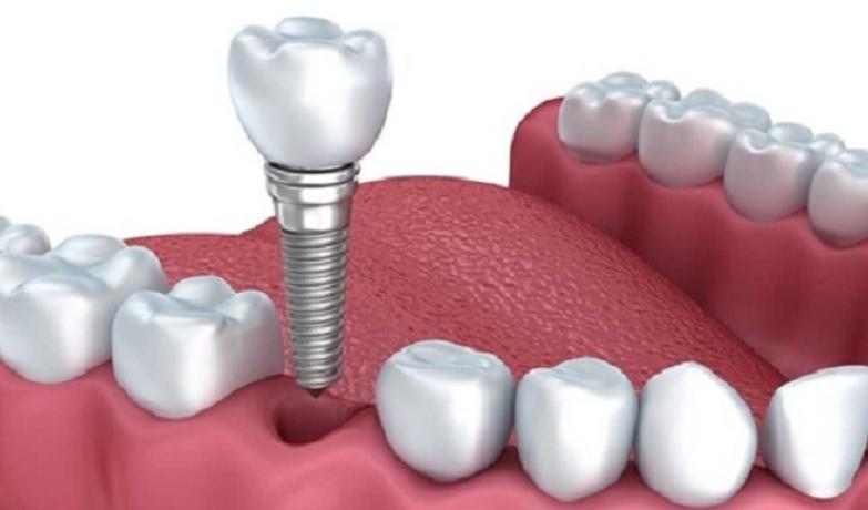 trong-rang-vinh-vien-bang-implant