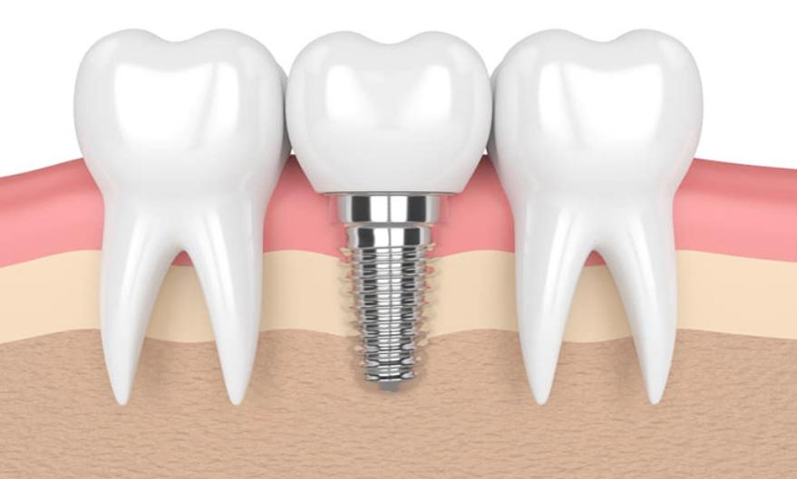 cay-ghep-implant-tai-da-lat